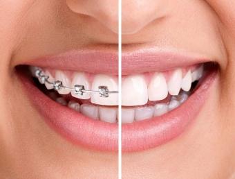 Лечение зубов и профилактика